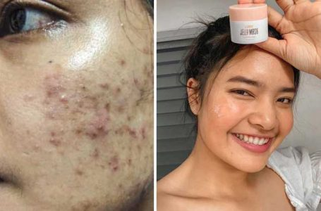 There are serious acne problems and no cure!